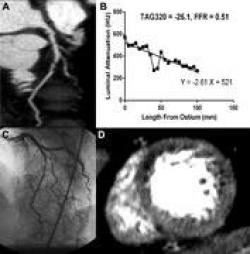 Combining CT stress perfusion and transluminal attenuation gradient to CTA